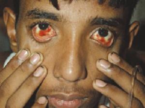 Dengue, doença agressiva